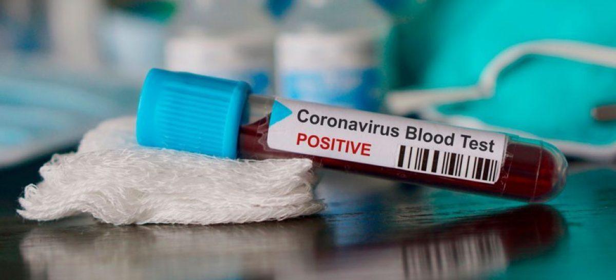Urgente: Una enfermera del Hospital Austral que vive en Escobar es el primer caso de coronavirus del distrito